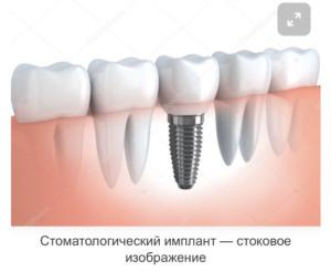 Фото импланта