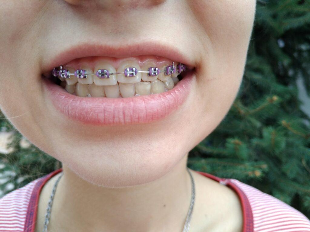 Стоматолог Ортодонт Днепр